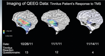 Tinnitus Partient Results QEEG